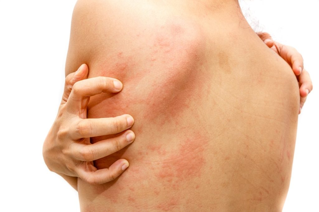 person suffering from dermatitis